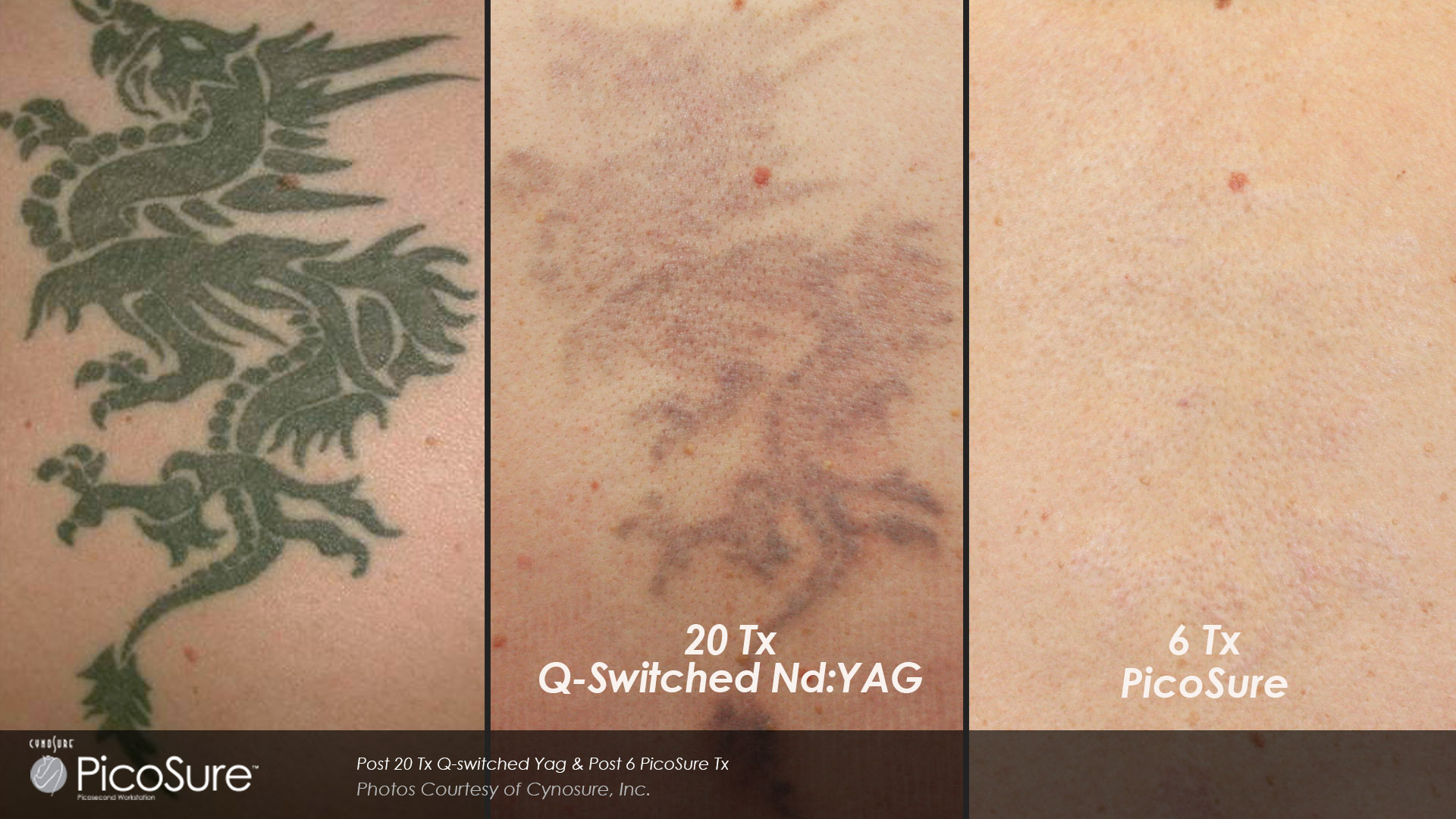 Laser Tattoo Removal | Chattanooga, TN | Shire Facial Plastic Surgery
