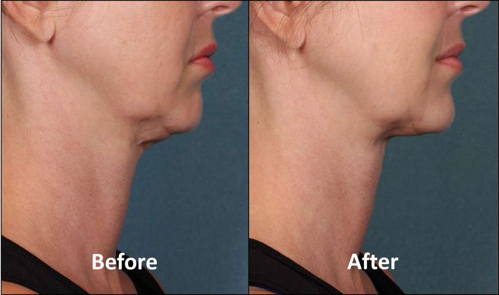 KYBELLA Patient Before and After (Side View)